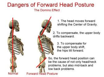 Forward-Head-Posture2